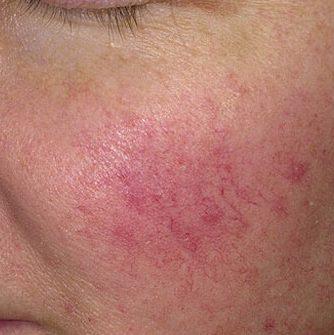 Lečenje problematične kože