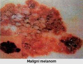 maligni melanomi